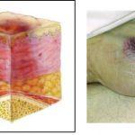 Clasificacion lesiones por presión