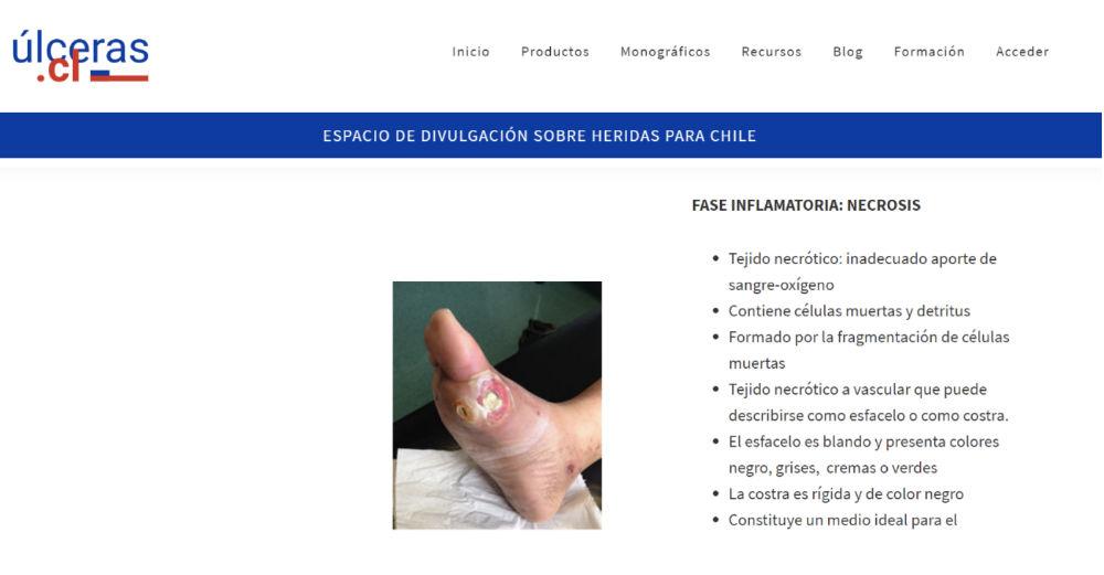 Detalle monografico Ulceras.cl